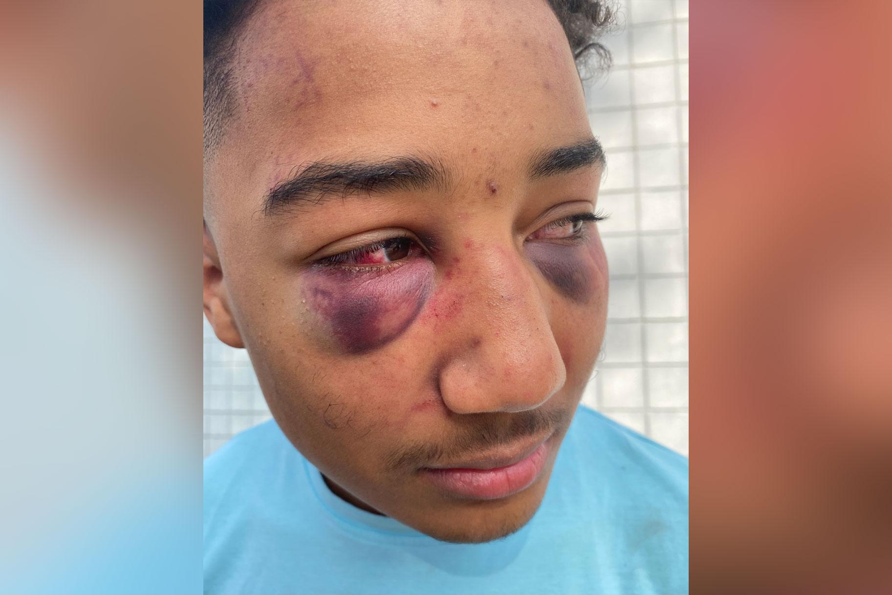 La golpiza policial contra un adolescente de California capturado en el video de la cámara corporal lleva a una demanda por derechos civiles del abogado de Rodney King