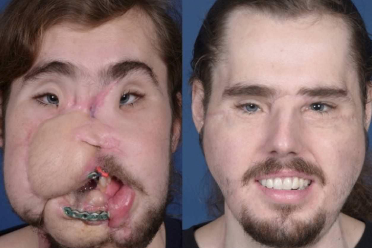 Človek, ki se je ustrelil v poskusu samomora, dobi nov obraz v 'Drugi priložnosti za življenje'