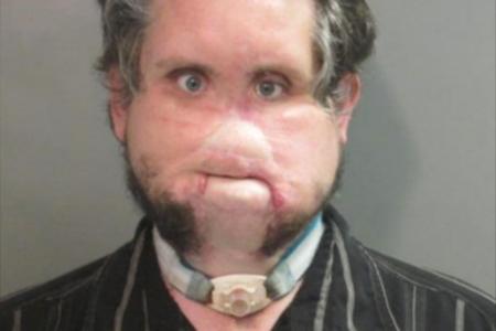Hombre sin nariz es arrestado por cargos de pornografía infantil por segunda vez
