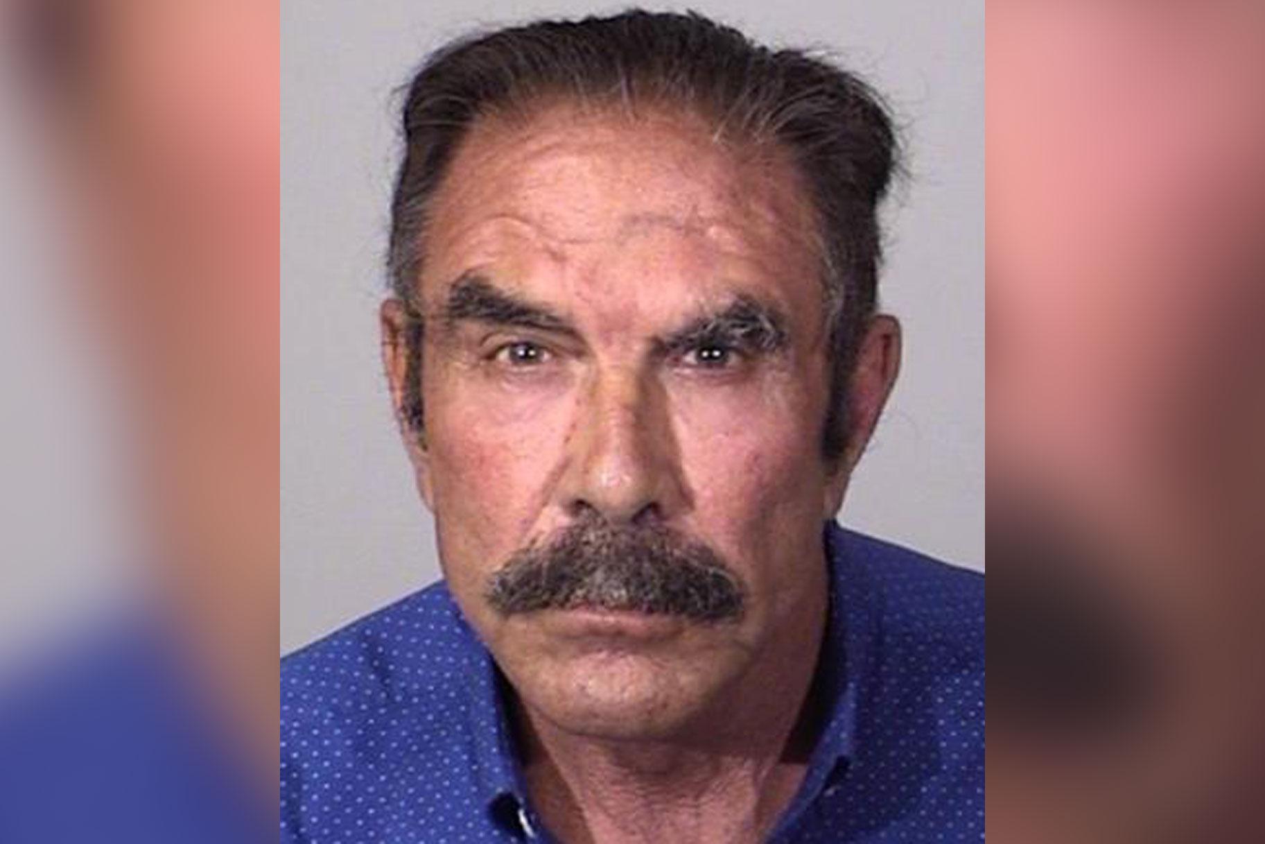 מנתח פלסטי בקליפורניה מואשם בתקיפה מינית של 15 חולים