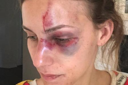 La novia del campeón brasileño de motocross publica una foto impactante luego de su arresto por cargos de violencia doméstica