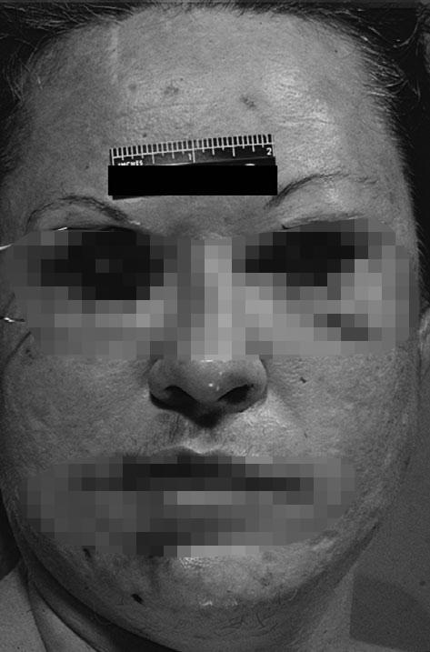 תמונות זירת פשע מציגות את האובססיה של צ'רלס אולברייט עם עובדי מין של 'רוצח גלגל העין'